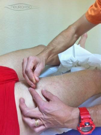Tratamiento de Punción Seca en Policlínica Neurofisio